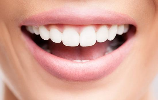 لمینت دندان، قیمت سال 98 و جدیدترین انواع آن